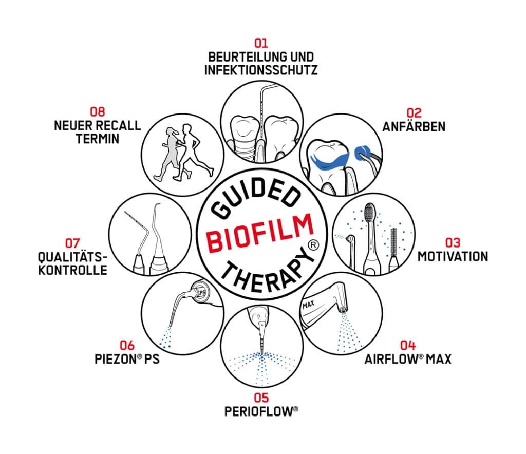 Guided Biofilm Therapy® | Zahnarztpraxis Eilendorf