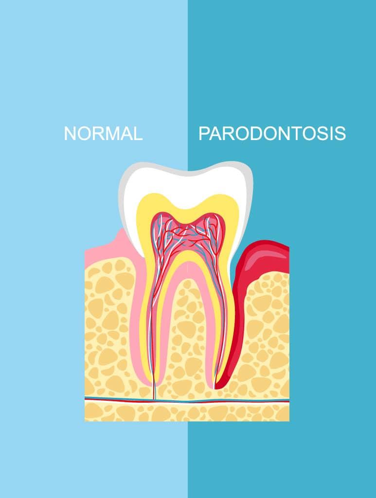 Parodontologie Eilendorf